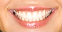 Bonding In West Hempstead Garden City Dental Bonding